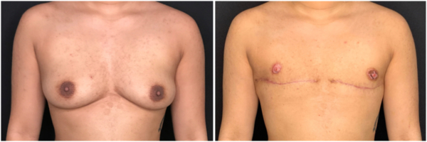 female-to-male-n-top-surgery-before-after-photo-nyc-cb-1-1