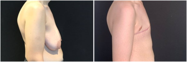 female-to-male-n-top-surgery-before-after-photo-nyc-kb-1-2