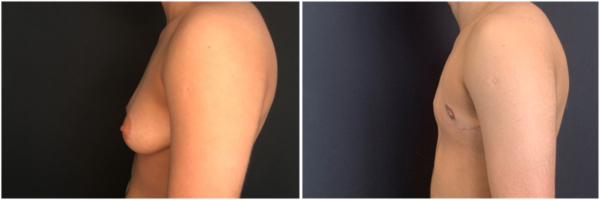 female-to-male-n-top-surgery-before-after-photo-nyc-lf-1-3