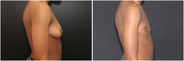 female-to-male-n-top-surgery-before-after-photo-nyc-tj-1-2