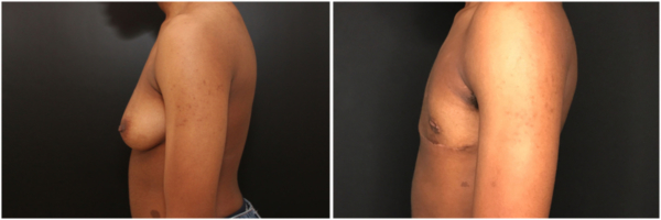 female-to-male-n-top-surgery-before-after-photo-nyc-tj-1-3